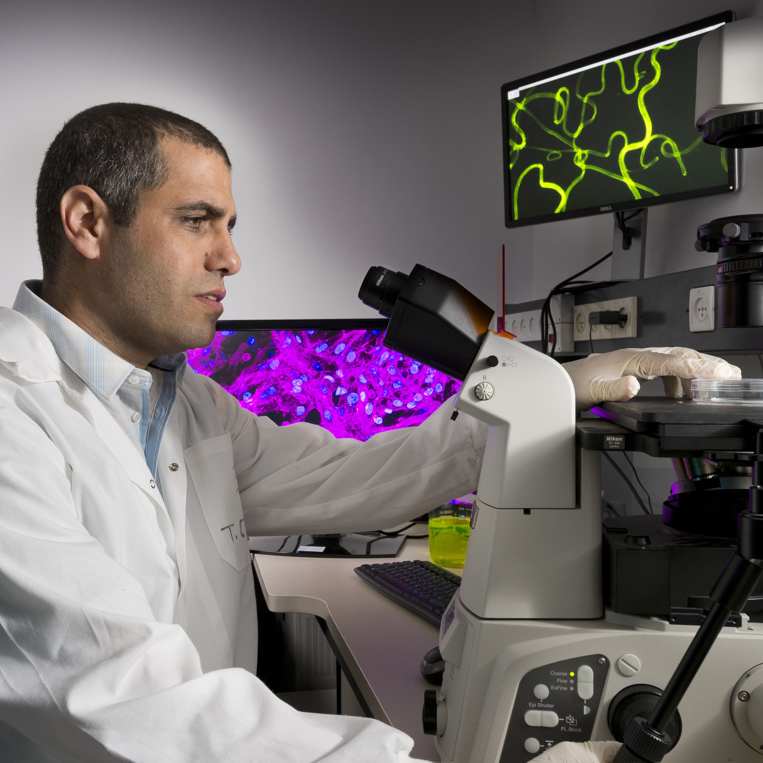 Patient's own cells used to engineer personalized tissue implants