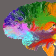 TAU-led project to create brain 'atlas' hailed a success