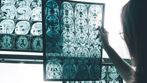 TAU Team Reverses Early Signs of Alzheimer's
