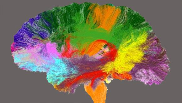 A new 'atlas' of the brain will help improve research and medical care. (Photo courtesy of Denis Le Bihan and his team.)