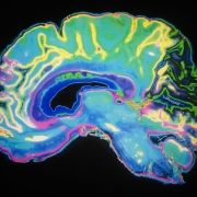 New TAU Research Links Alzheimer's Disease to Brain Hyperactivity