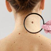 Optical Technology Generates Immediate Melanoma Diagnosis